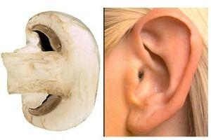 fungo-orecchio