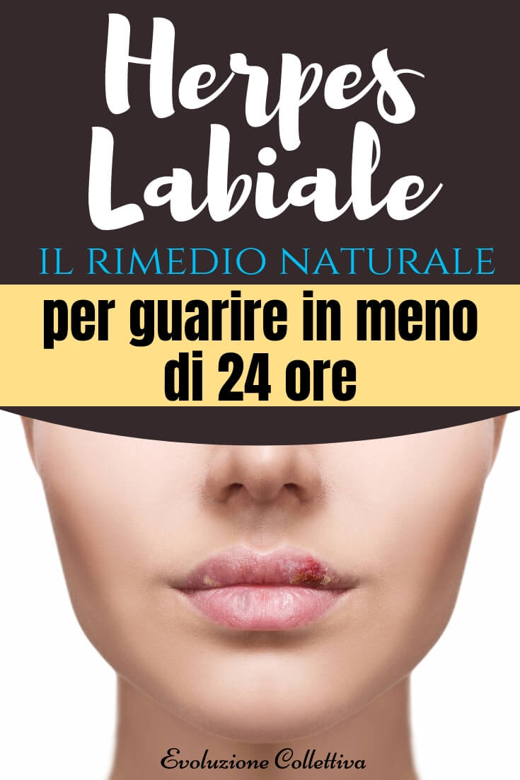 #herpeslabiale #aglio #rimedinaturali #evoluzionecolletiva