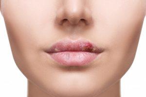 Rimedi naturali per guarire dall'herpes in poche ore
