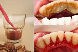 Come rimuovere il Tartaro dai Denti