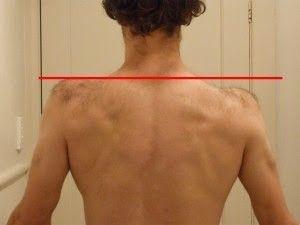 postura-spalla-elevata