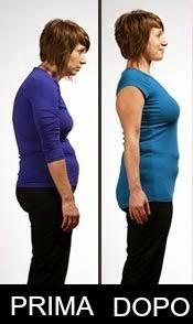 postura-spalle-arrotondate