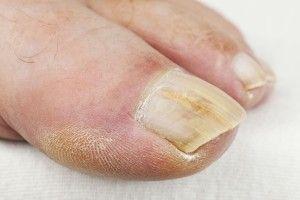 micosi unghie piedi: rimedi naturali e con bicarbonato