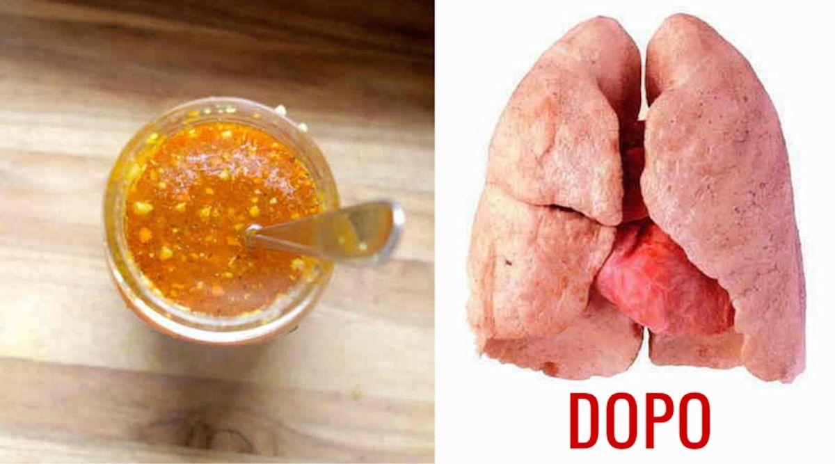 zenzero, curcuma e cipolla: l'elisir naturale per pulire i polmoni