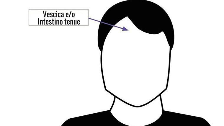 vescica-intestino-tenue