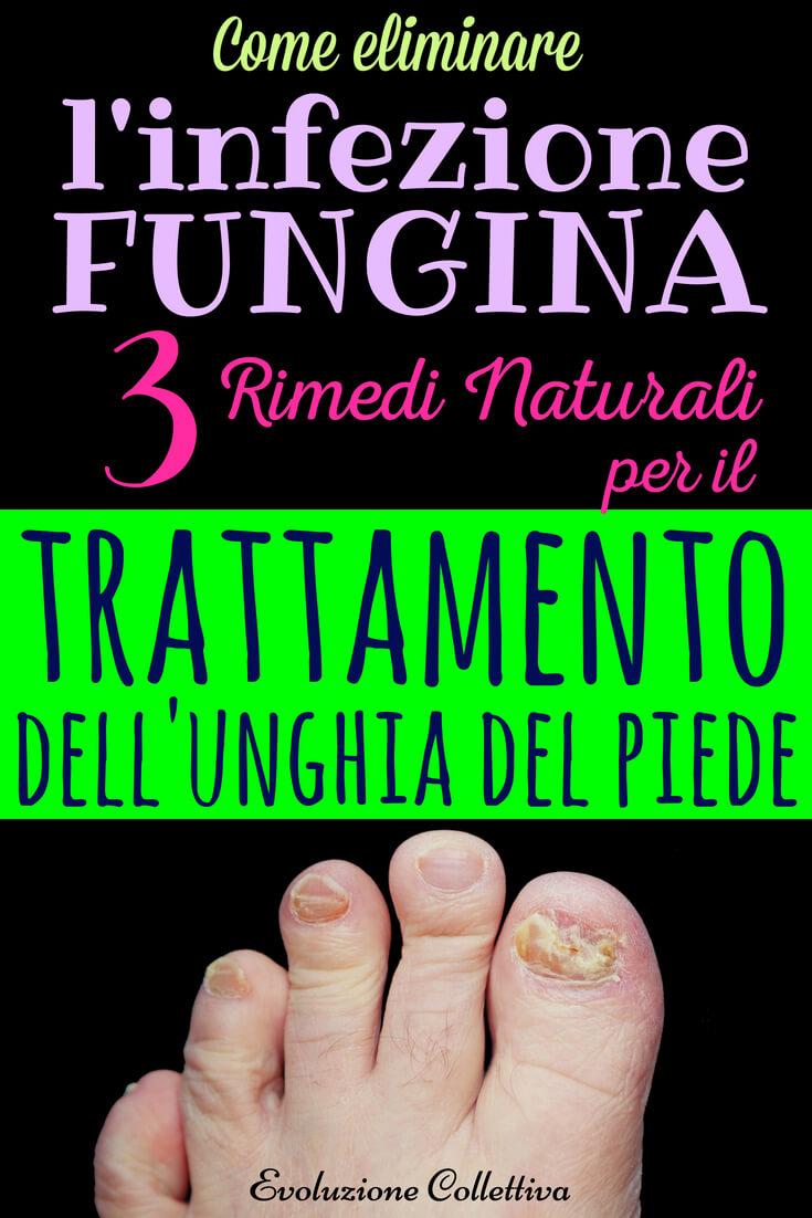 Umidità In Casa Rimedi Della Nonna micosi unghie dei piedi: bicarbonato e rimedi naturali